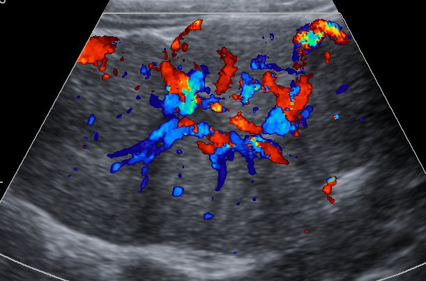 Фокальная нодулярная гиперплазия печени