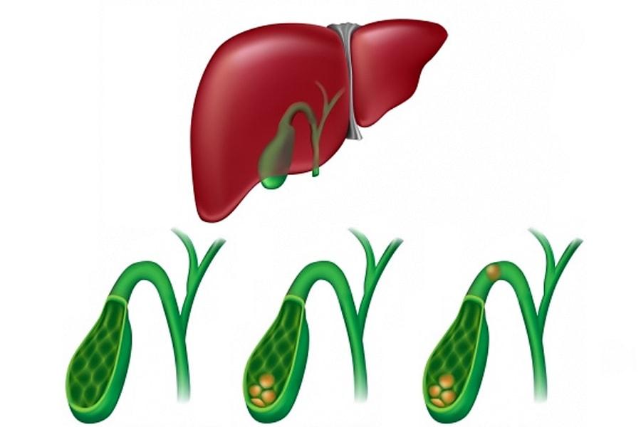 Диета при желчнокаменной болезни холецистите