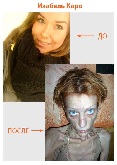 изабель каро до и после фото