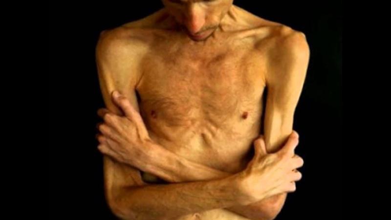 Рак печени от гепатита