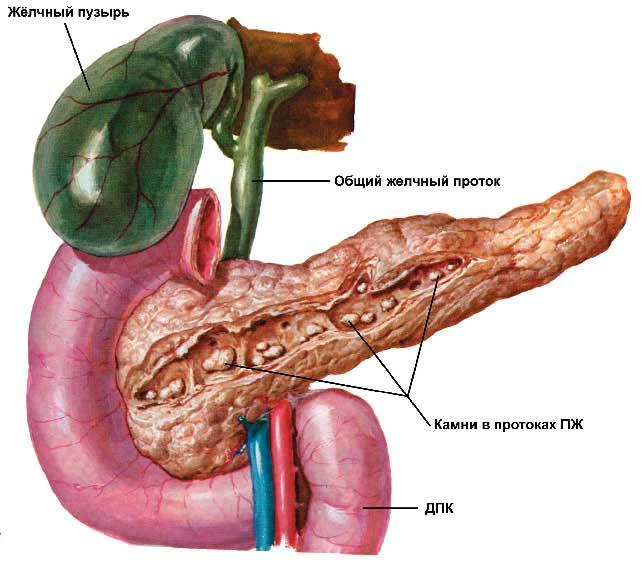 Хронический билиарный панкреатит